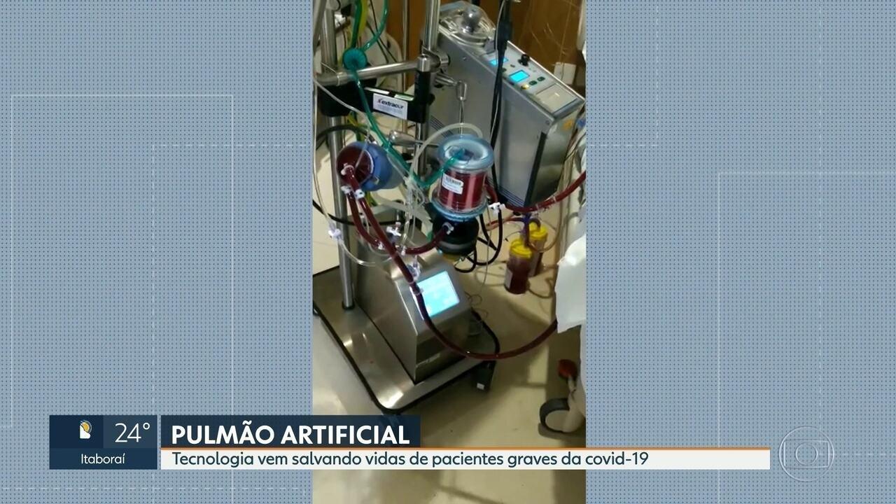 Tecnologia vem salvando vidas de pacientes graves do novo coronavírus