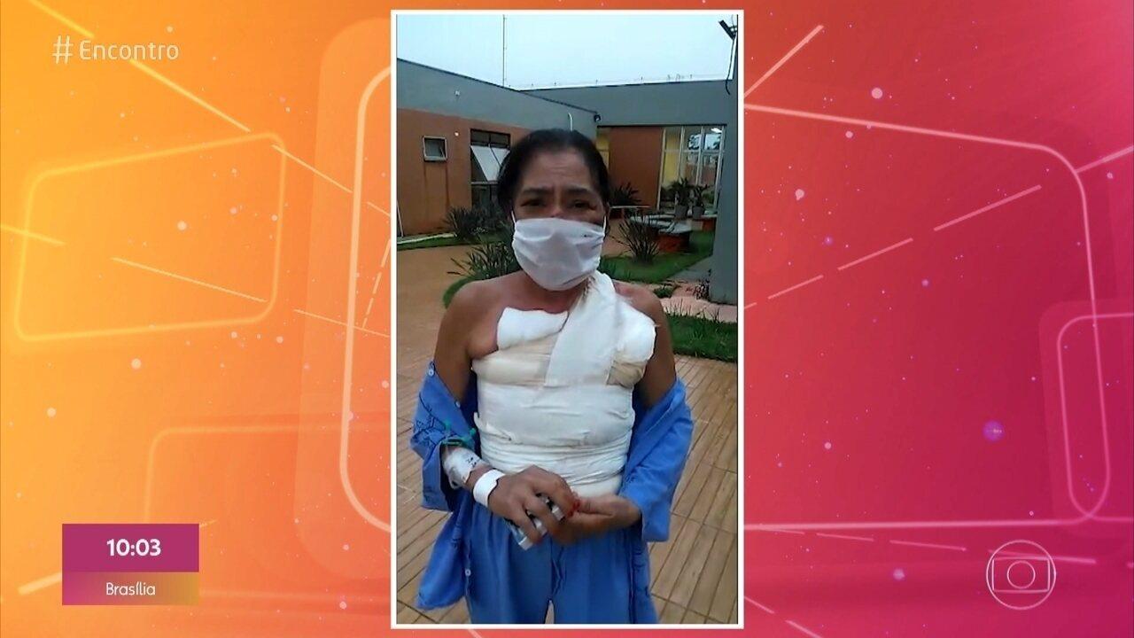 Hélia teve 50% do corpo queimado pelo marido